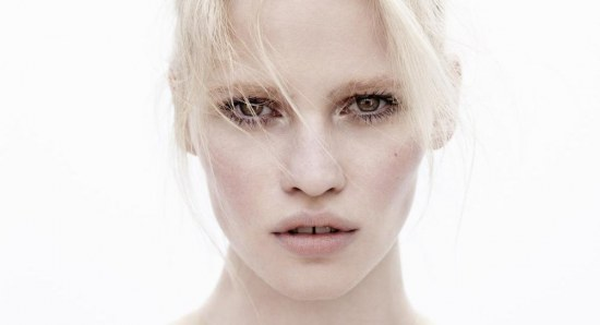Lara Stone is another model famous for her gap tooth